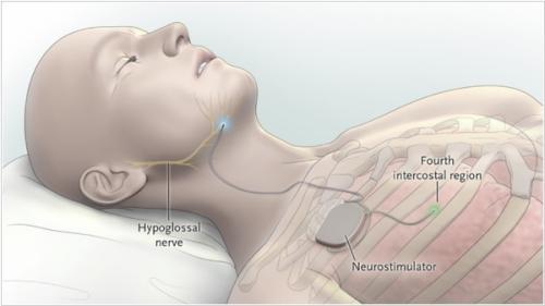 лечение эпилепсии в Израиле. VNS-терапия
