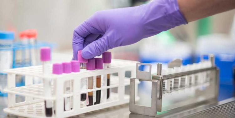 диагностика рака пищевода по стадиям