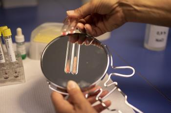анализ крови при механической желтухе