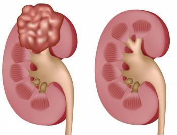 Классификация рака надпочечников