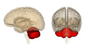 Лечение опухолей мозжечка за границей
