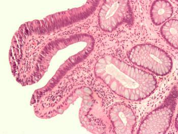 Виды рака желудка: полипозный рак