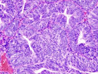 Виды рака шейки матки: железистый рак