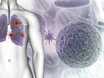 Симптомы рака молочной железы при метастазировании опухоли