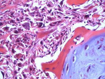 Разновидности хондросаркомы: дедифференцированная опухоль