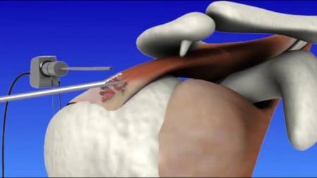 Лечение в израиле суставы жидкость в коленном суставе синовит лечение