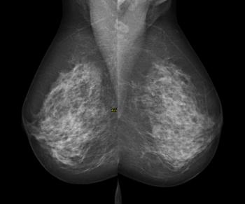 маммография за границей