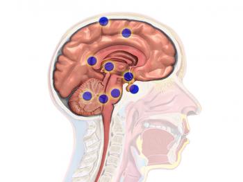 Лечение метастазов мозга за границей эффективно за счет применения инновационных методов