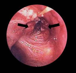рак трахеи
