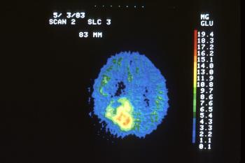 Эффективность лечения метастазов в мозгу зависит от точности и своевременности диагностики