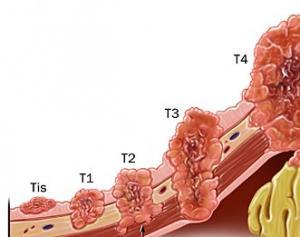 Стадии рака. Принципы классификации