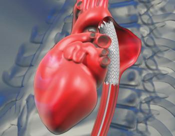 Стентирование при аневризме аорты