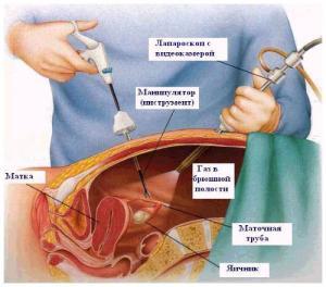 Лапароскопическая гистерэктомия в Израиле