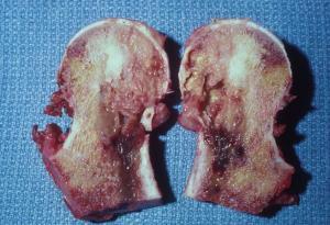 фибросаркома