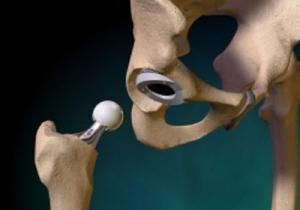 Лечение остеоартроза в Израиле