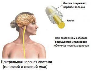 Кисту головного мозга после инсульта как лечат