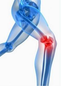 Протезирование коленного сустава за границей