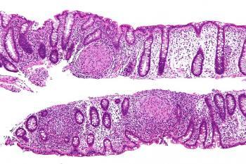 лечение полипов в кишечнике