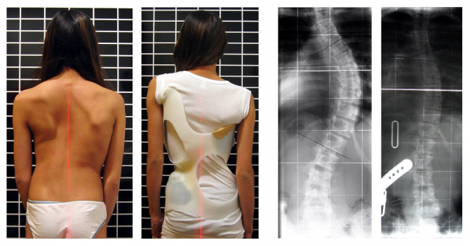 what is scoliosis essay