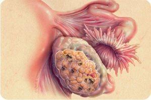 опухоли яичников