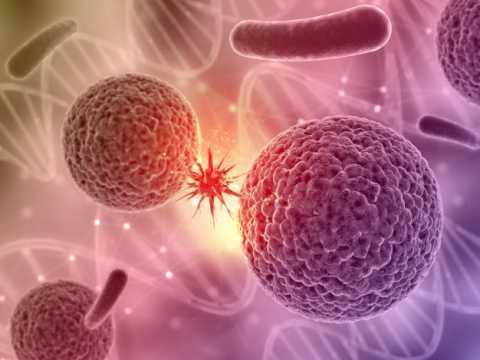 стадии рака толстого кишечника